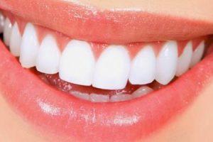 تعرف على.. وصفات طبيعية لتبييض الأسنان خلال دقائق معدودة وإزالة التصبغات