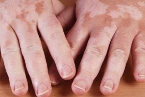 ما هو مرض البهاق.. والطرق الفعالة لعلاجه